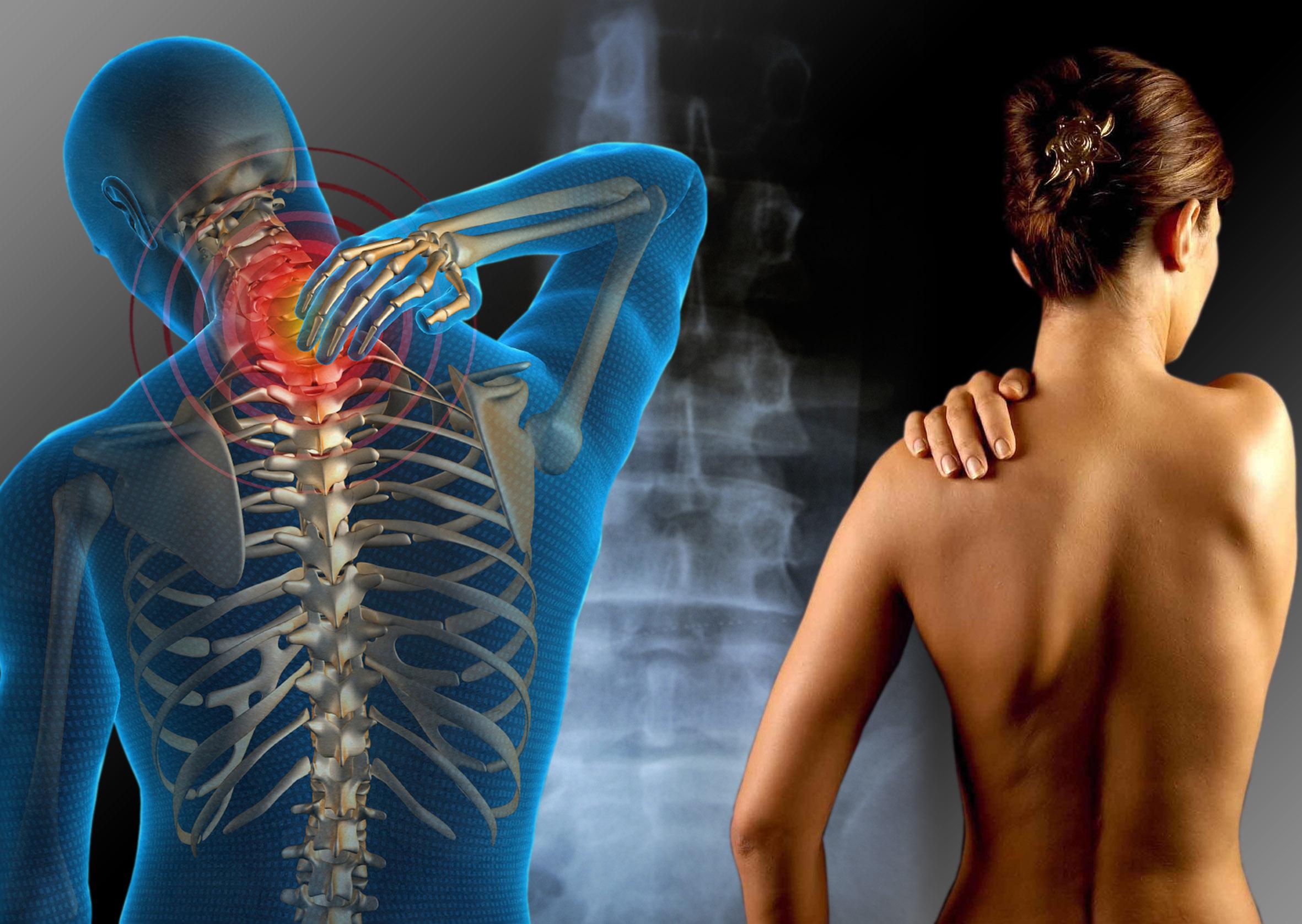 Fibromialgia y ejercicio fisico II