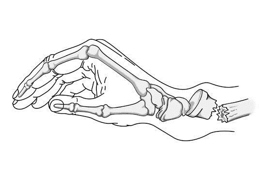 la rehabilitaci u00f3n tras la fractura de colles   pilates a