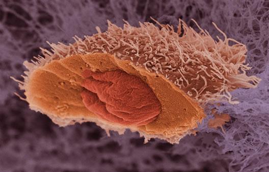 Cáncer: Cuando una célula se vuelve maligna