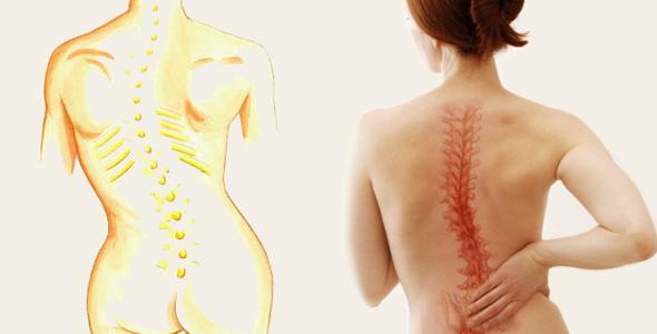 El papel de la fisioterapia en la escoliosis