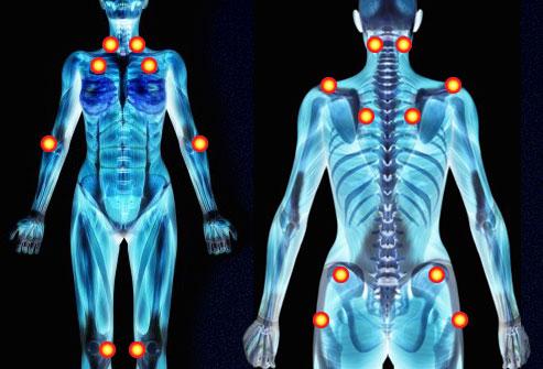 Fibromialgia ¿problema de disfunción de los shunts venosos?
