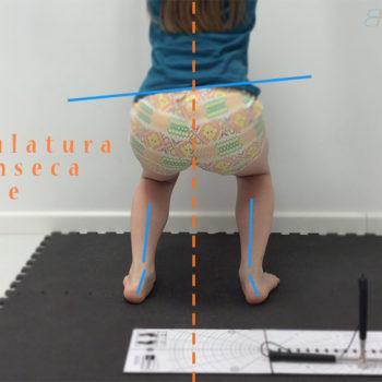 musculatura intrinseca del pie