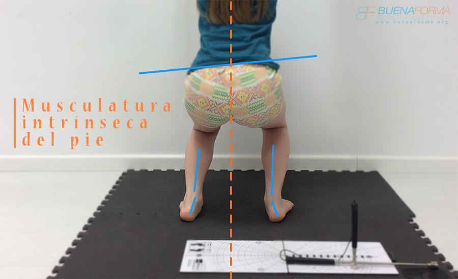 Importancia de la musculatura intrínseca del pie